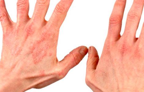 Экзема на руках - чем лечить? Причины и симптомы