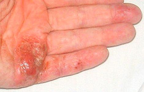 Псориаз на нервной почве - от нервов