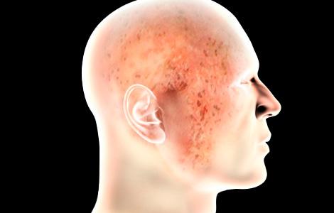 Санаторное лечение варикоза вен на ногах