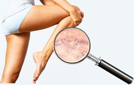 Самое дешевое лечение грибка на ногах