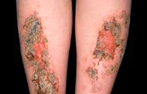 Выглядит атопический дерматит детей фото