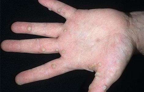 Лечение папилломавируса на половых органов