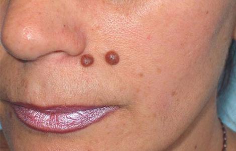Удаление бородавки с лица лазером